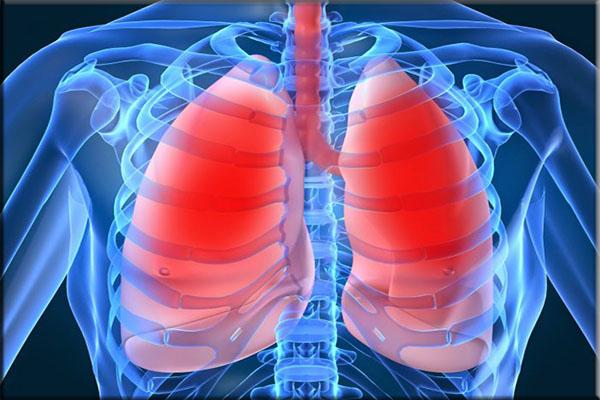 Penyakit Paru - paru